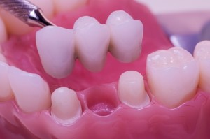 dental bridges glasgow