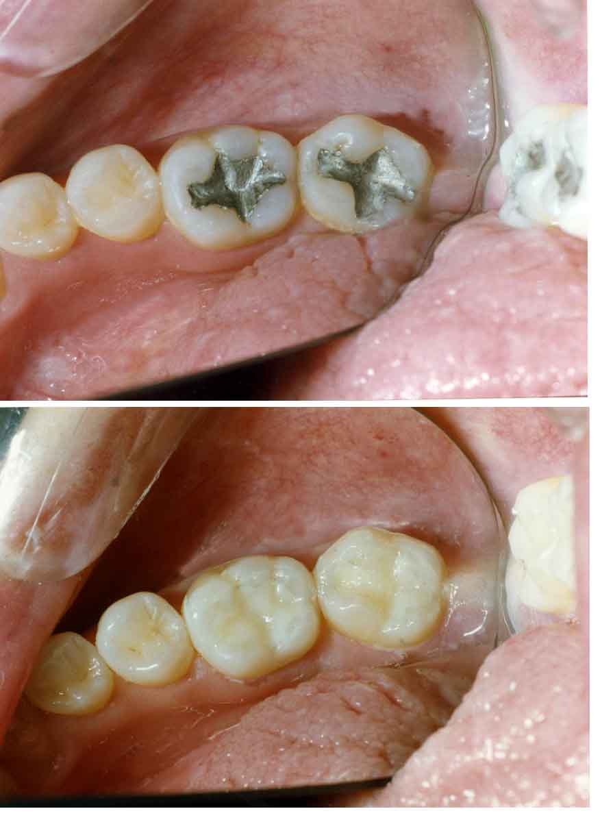 White fillings in glasgow govan dental care today solutioingenieria Gallery