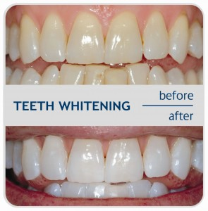 teeth whitening in glasgow