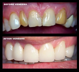 cosmetic veneers glasgow
