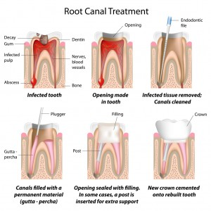 root canal treatment Glasgow