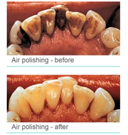 air polishing 1